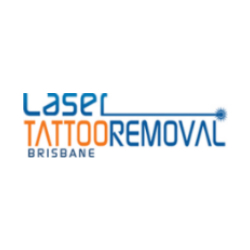 Laser Tattoo Removal Brisbane